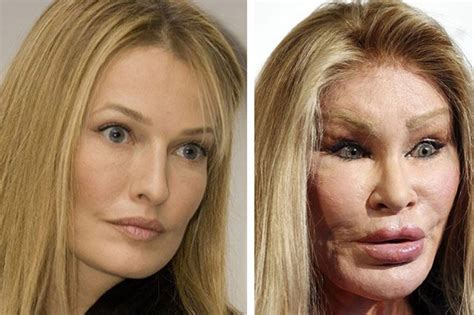 10 Celebs Who Ruined Their Faces Through Plastic Surgery