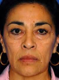 Scottsdale Juvederm Before and After Photos - Phoenix