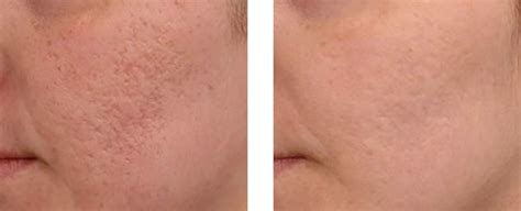 Acne Scars Treatments | Medical Day Spa of Chapel Hill
