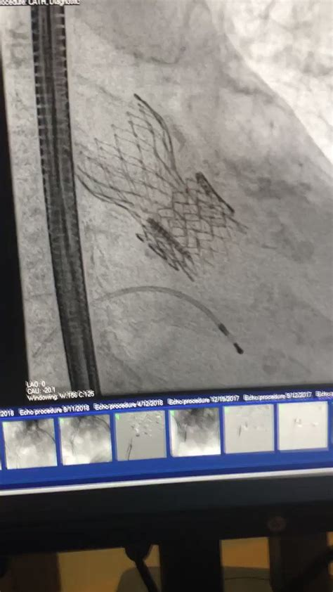 """Philippe Genereux on Twitter: """"TAVR-in-TAVR today"""