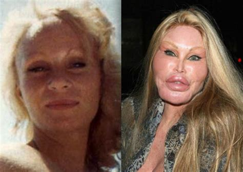 Catwoman Plastic Surgery Picture Evidence - Before and